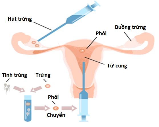 Thụ tinh nhân tạo trong ống nghiệm ở người