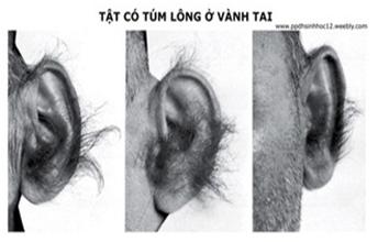 Tật có túm lông ở tai
